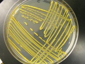 Microbiological Streaking Repair